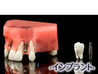 implant_characteristics01