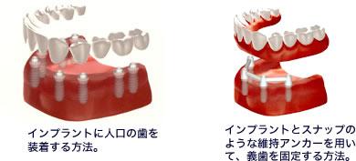 implant_flow03